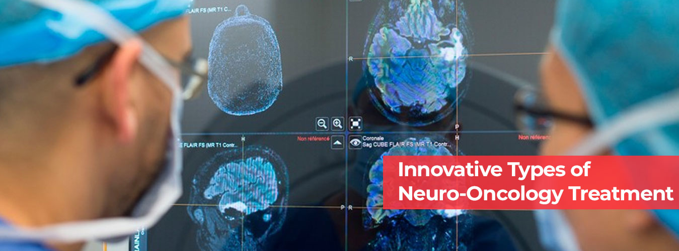 Innovative Types of Neuro-Oncology Treatment in Udaipur