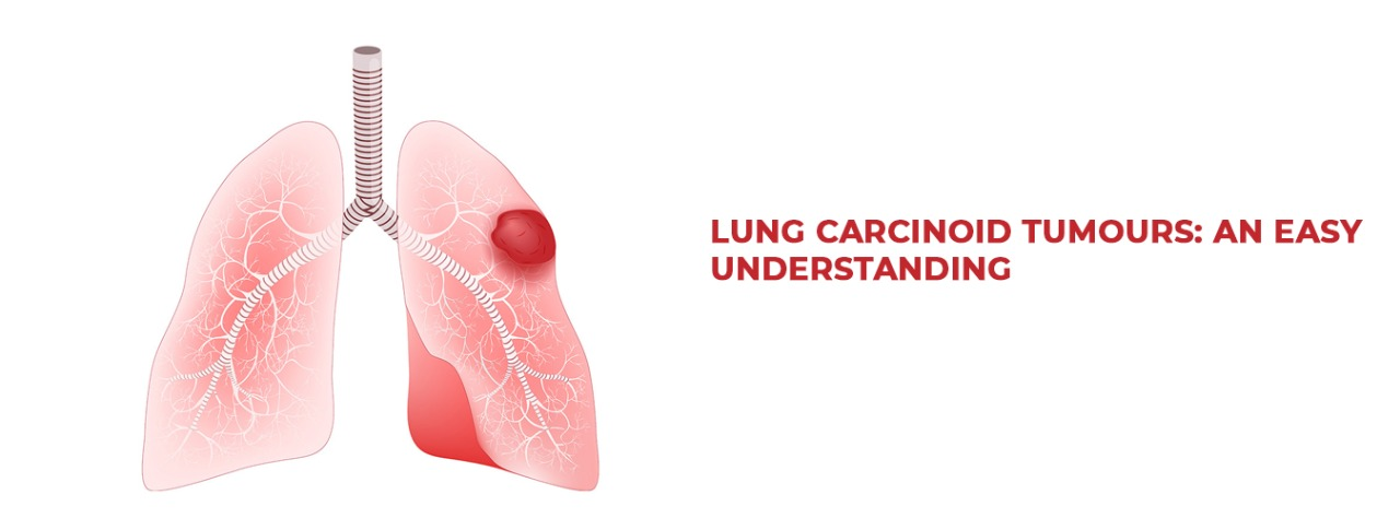 Lung Carcinoid tumours: An easy understanding